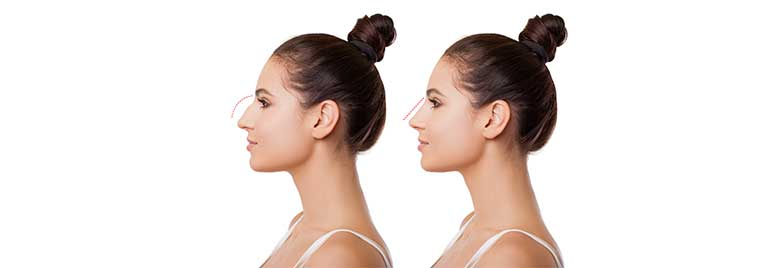 Rhinoplasty: trust your surgeon