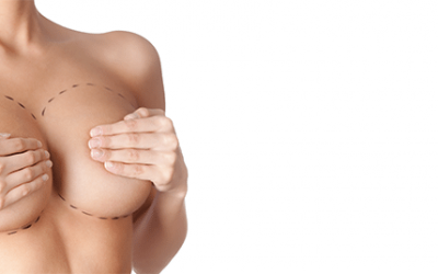 What is Breast Implant Associated Anaplastic Large Cell Lymphoma, and am I at risk?
