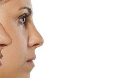 The ins and outs of rhinoplasty: What to expect, why to consider it and where to have it done