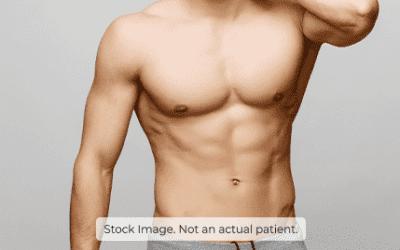 How to prepare for a gynaecomastia procedure